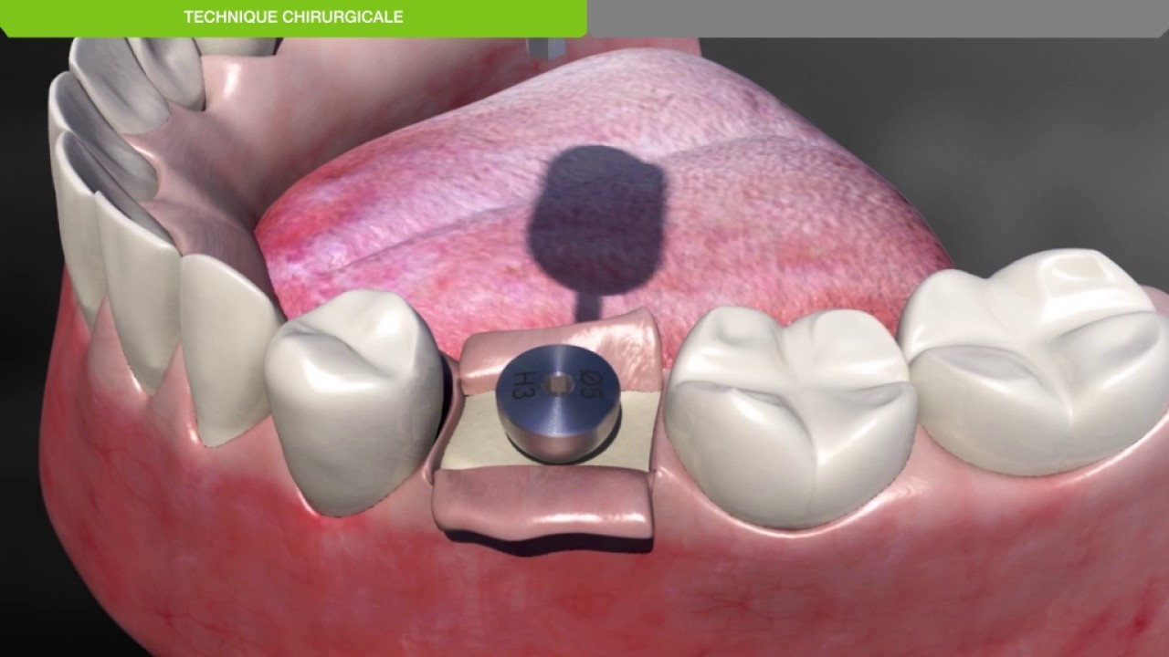 Implant dentaire : que faut-il savoir ?